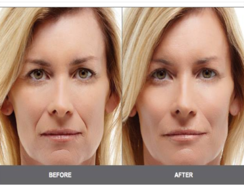 Cosmetic Facelift Acupuncture