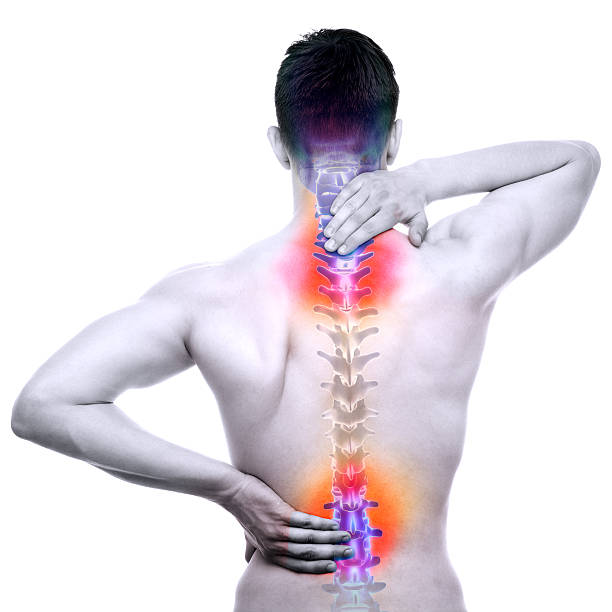 Failed Spinal Surgery Syndrome